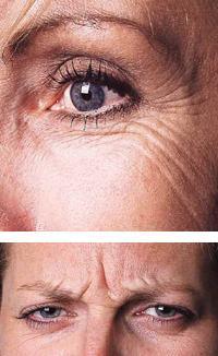 botox bei migräne